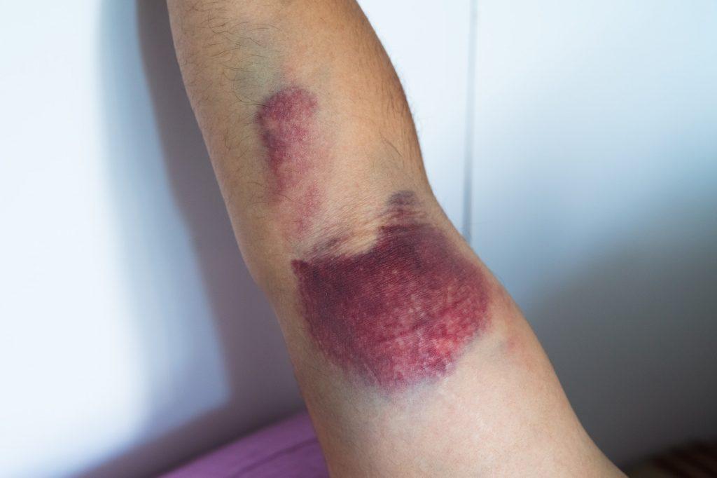 Bicep tear or strain, tendon injuries on a muscular man hand. Trauman or trauma injury.